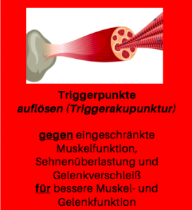 Dry needling, Triggerakupunktur, Matrix-Rhythmus-Therapie